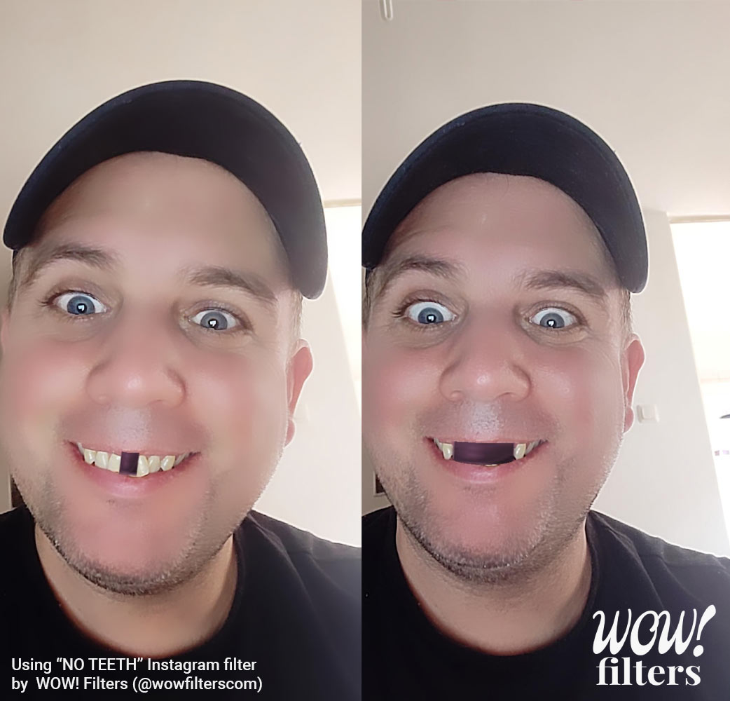 No Teeth Instagram and Facebook camera effects